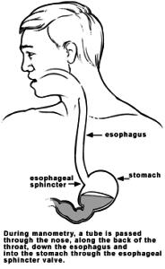 esophageal_manometry